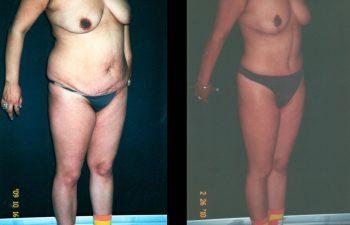 Levantamiento de Senos + Abdominoplastia + Liposucción de espalda-cintura y caderas. Resultado al año.