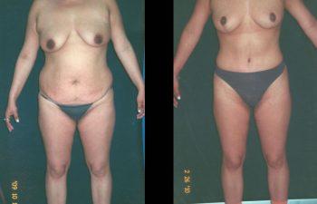 Abdominoplastia + Levantamiento de Senos + liposucción de espalda-cintura y caderas. Resultado al año.