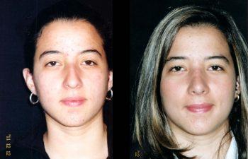 Rinoplastia de Aumento y reducción en su dorso nasal. Fueron necesarios injertos separadores. Punta Nasal Proyectada y definida. Resultado a los 7 meses.