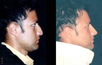 Rinoplastia de Aumento y reducción en su dorso nasal. Fué necesario un pedestal, proyectar y definir la punta nasal. Resultado a los 2 años.