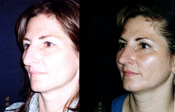 Rinoplastia de Reducción en su Radix y dorso nasal. La Punta nasal fué necesaria definirla y acortarla. Resultado a los 7 meses. Obsérvese la Naturalidad del resultado.