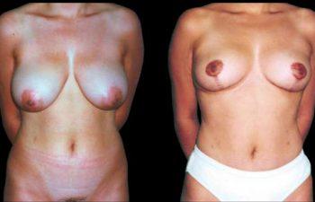 Solicitud: Levantamiento con reducción del seno. Tronco: mediano, espalda media, mediana estatura. Procedimiento: Pexia con cicatriz en ancla. Resultados a los 8 meses.