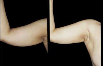 Liposucción de brazo colgante. Vista frontal. Buena retracción de piel.