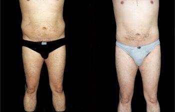 Liposucción de abdomen y caderas en hombre. Nótese piel absolutamente sana. Resultado a los 6 meses.
