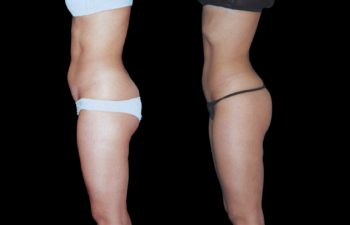 Vista de perfil izquierdo. Nñitese liposucción abdominal.