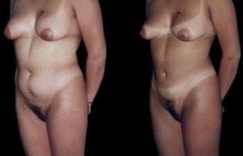 Vista oblicua izquierda. Nótese piel intacta, sin manchas ni irregularidades.
