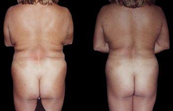 Liposucción en mujer obesa, de espalda, cintura, abdomen superior e inferior.