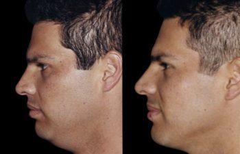 Perfil izquierdo del mismo paciente. Nótese delineamiento de la mandíbula.