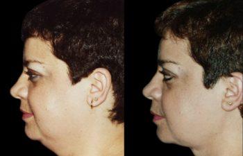 Liposucción de papada y mejilla en obsesa. Obsérvese excelente retracción de piel.