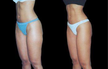 Vista oblicua de la misma paciente. Obsérvese también la Liposucción del abdomen.