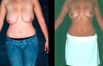 Mamoplastia de Reducción con cicatriz en Ancla. Se retiraron 250 gr de cada seno. Resultado al año. Vista de Frente