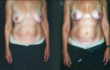 Reducción de 250 gramos, resultados a los 4 meses.