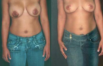 Levantamiento de senos + Retirada de implantes- resultados a los 5 meses.