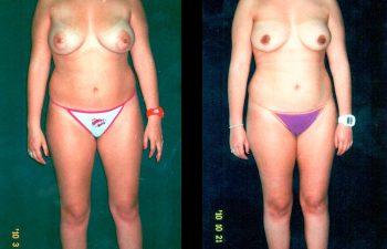 Mamoplastia de Reducción SIN CICATRIZ visible. Técnica Periareolar. Se retiraron 280 gra de cada seno. Resultado a los 7 meses. Vista de Frente