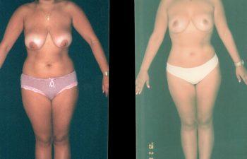 mamopexia2-1-1