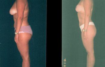 mamopexia2-1-2