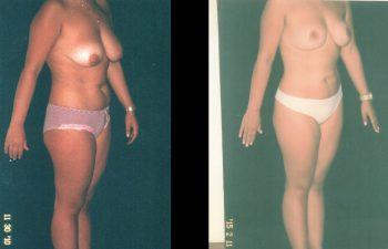 mamopexia2-1-3