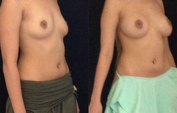 mamoplastia-aumento-diagonal-derecha