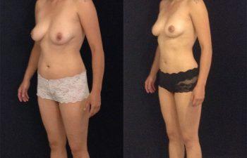 mamoplastia-reduccion-liposuccion-dd