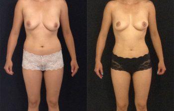 mamoplastia-reduccion-liposuccion-frontal
