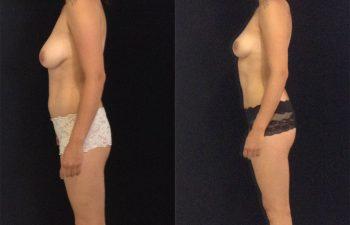 mamoplastia-reduccion-liposuccion-li