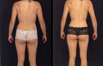 mamoplastia-reduccion-liposuccion-p