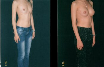mamoplastia2-1-2