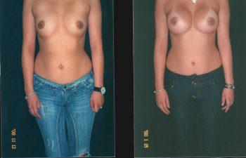 mamoplastiaaumento2-1-1