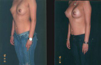 mamoplastiaaumento2-1-3