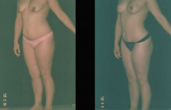 pexia-mamariaabdominoplastia-toma-3