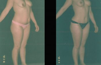 pexia-mamariaabdominoplastia-toma-4
