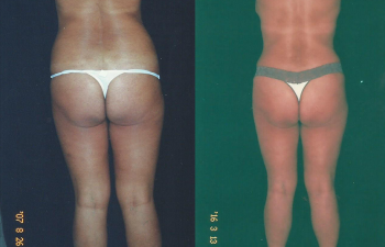 Vista posterior