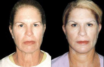 Elevación de cejas + implante de mentón + rejuvenecimiento de cuello y mejillas. Resultado a los 8 días - (por viaje)