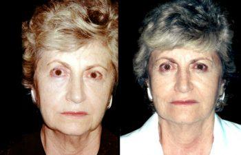 Elevación de ceja izquierda + párpado superior e inferior + rejuvenecimiento de cuello y mejilla. Resultado a los 2 años. Resultado a los 2 años.