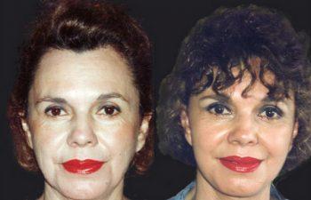 Rejuvenecimiento de cuello y mejilla + Liposucción de cuello + botox. Resultado a los 4 años.