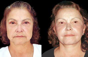 """Corrección de """"mentón de bruja"""" + arruga de labio superior + rejuvenecimiento de mejilla + cuello en lifting secundario. Resultado a los 3 meses"""