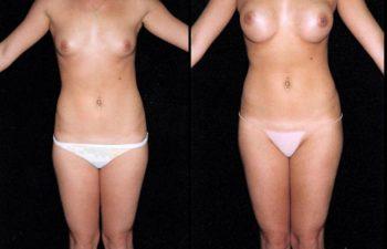 Mamoplastia de aumento y liposucción de cintura, Nótese descenso del surco mamario.