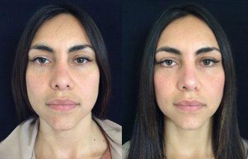 Colocación de malla dérmica en parpados inferiores + Rinoplastia Secundaria: Retirada de injerto en el radix + Aumento de dorso nasal + aumento, definición y alargamiento de punta nasal