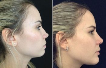 Corrección rinoplastia mujer perfil derecho