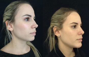Corrección rinoplastia mujer perfil diagonal derecho