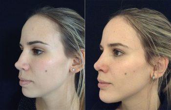 Corrección rinoplastia mujer perfil diagonal izquierdo