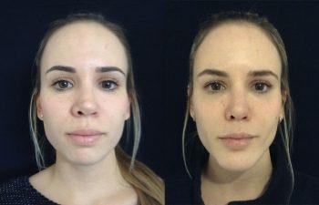 Corrección rinoplastia mujer perfil frontal