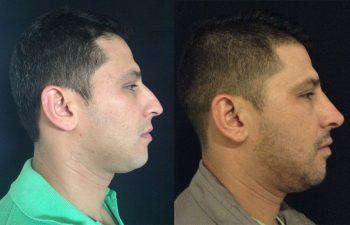 Rinoplastia hombre perfil derecho