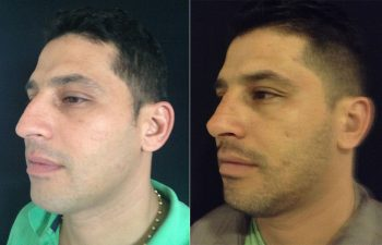 Rinoplastia hombre perfil diagonal izquierdo