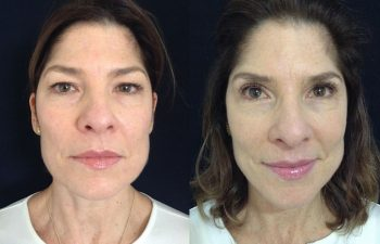 Blefaroplastia mujer perfil frontal