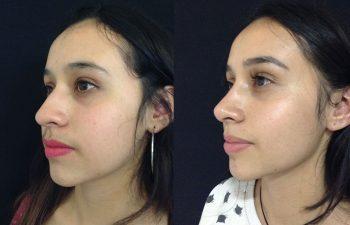 Rinoplastia mujer perfil diagonal izquierdo