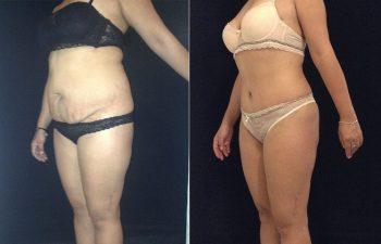 Abdominoplastia mujer perfil diagonal izquierdo
