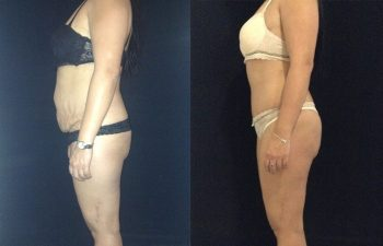 Abdominoplastia mujer perfil izquierdo