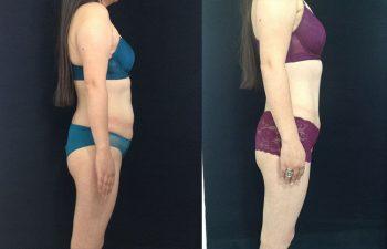Abdominoplastia con ombligo tridimensional + Liposucción de espalda, cintura, cadera. Resultado a los 3 meses.
