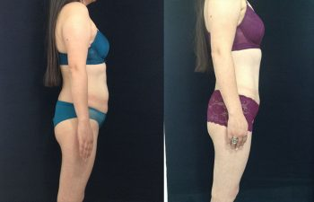 Liposucción de espalda, cintura, cadera + Abdominoplastia con ombligo tridimensional. Resultado a los 3 meses.